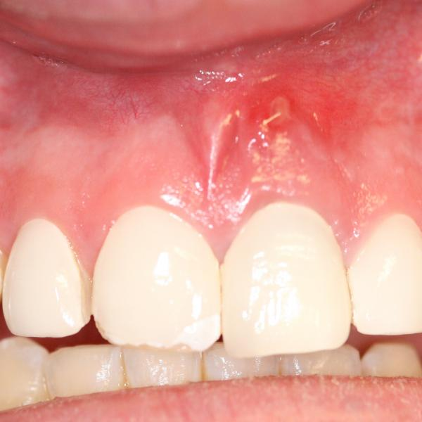 Swelling Ice White Dental